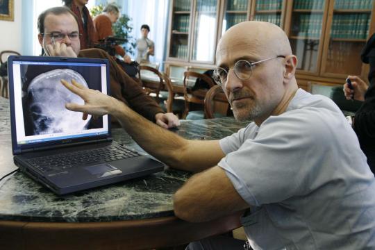 Neurochirurg-Professor-Sergio-Canavero