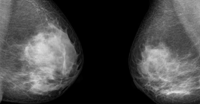 mammogram-stop-fi